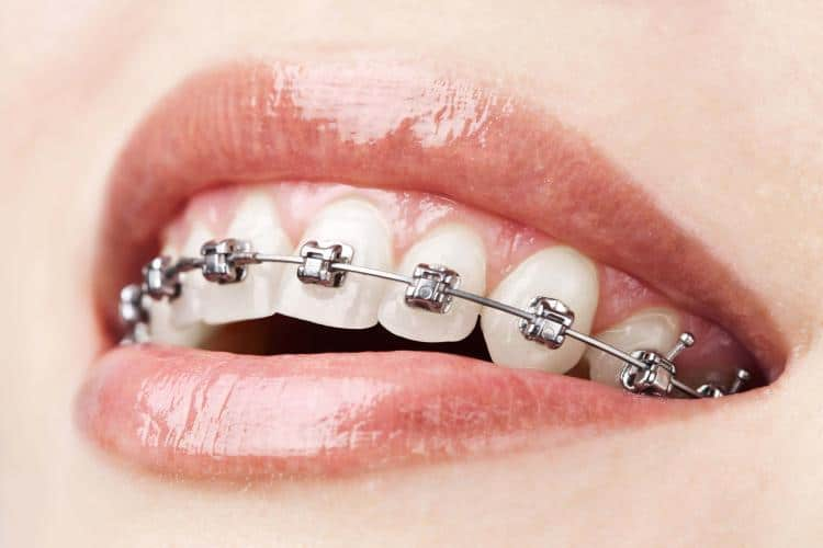 Traditional Metal or Clear Braces Braces for Adults