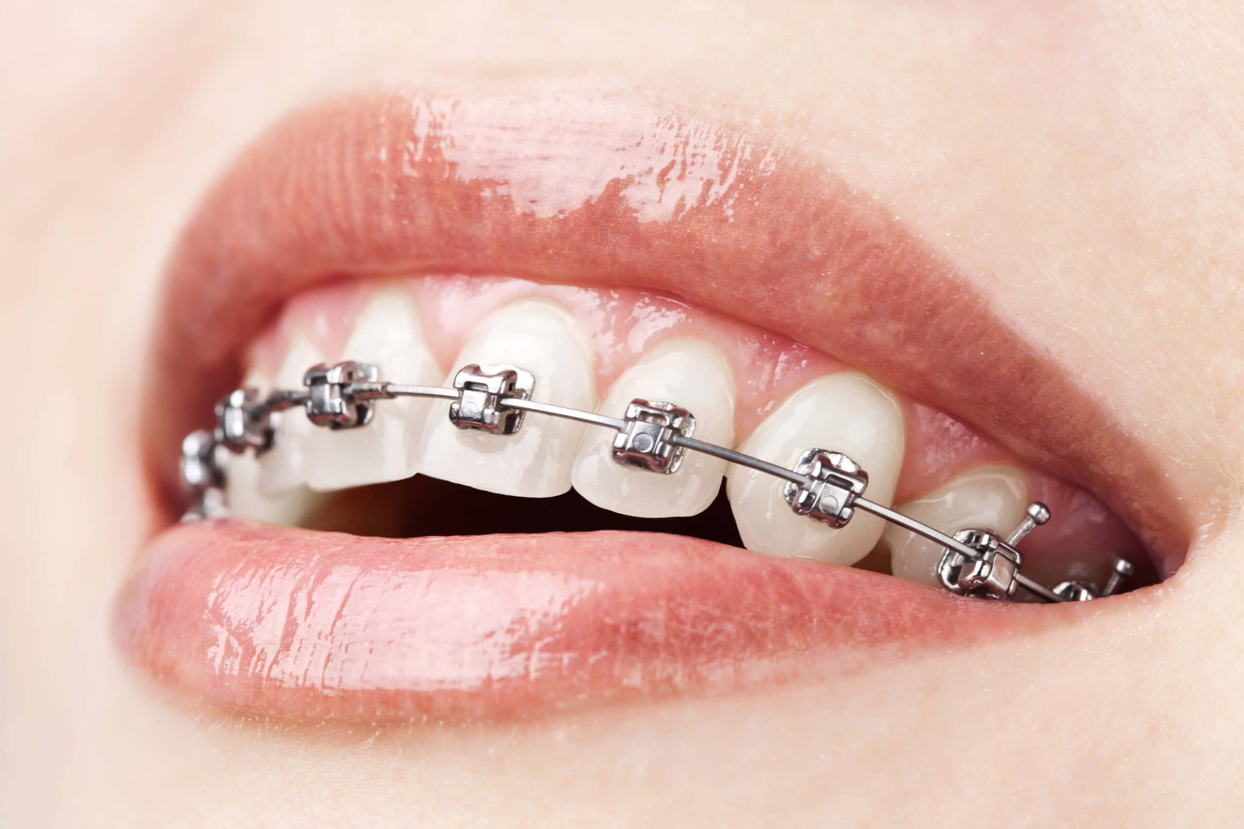 How to take care of my braces with Coronavirus disease.