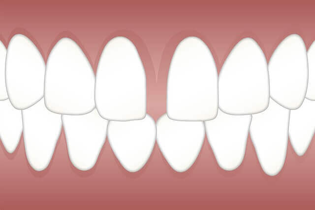 Fixing Gaps in Teeth