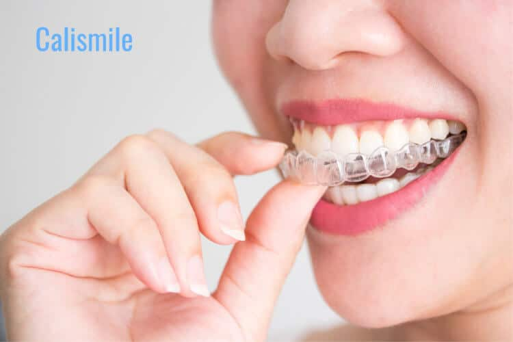 How Invisalign Improve Jawline