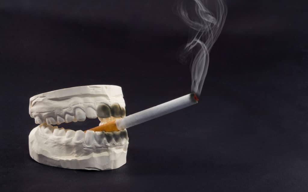 smoke with braces